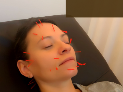 Cosmetic Acupuncture, Your New Favorite Beauty Treatment