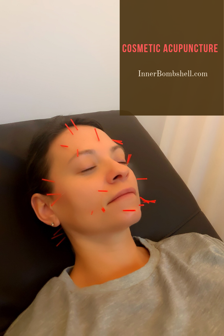Cosmetic Acupuncture, Skincare, Toxic Free, Wrinkles, Fine Lines
